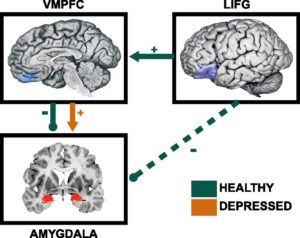 Schematic of brain regions that showed significantly different association with amygdala in control versus depressed individuals for Depression post